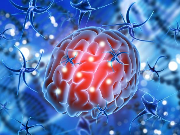 La epilepsia: ¿Qué es y cómo actuar ante un ataque?